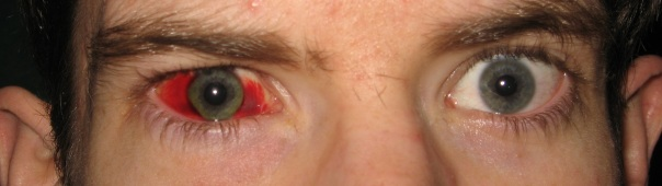 Adam's gorgeous subconjunctival hemorrhage. Acquired through Rage. Or because the kick of his gun smacked his monocular.