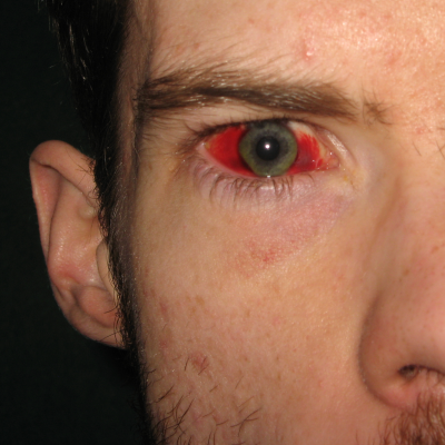 "To date, Adam is the only SB! member to be featured prominently in a medical journal, which describes his subconjunctival hemorrhage as being ""caused by being smacked by his video game gun or something."""